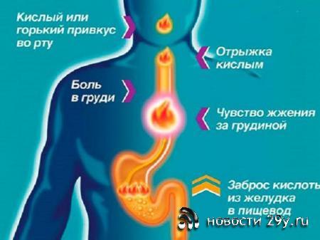 Причины, из-за которых может возникнуть изжога
